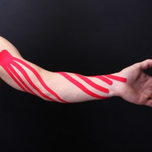 Тейпирование при лимфостазе руки фото 5