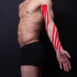 Тейпирование при лимфостазе руки фото 6