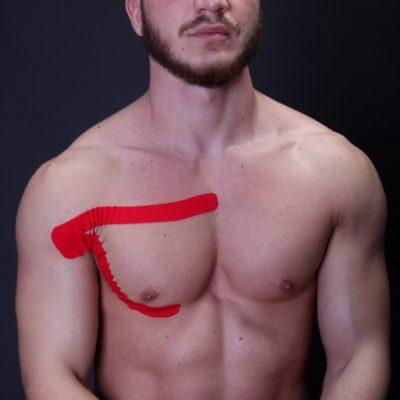Тейпирование грудной мышцы фото 3