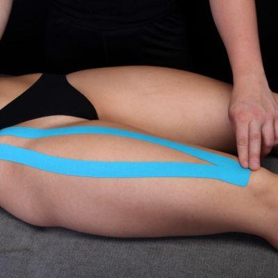 Тейпирование мышцы бедра часть 2