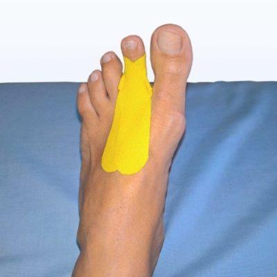 Тейпирование пальцев стопы часть 1