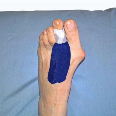 Тейпирование пальцев стопы часть 2