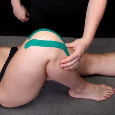 Тейпирование коленного сустава. Аппликация тейпа.