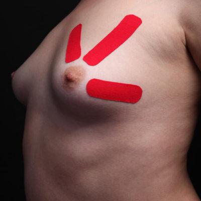 Тейпирование груди Фото 1